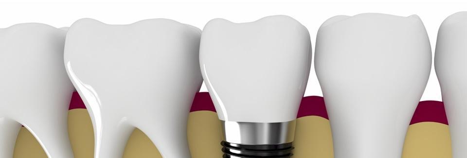 dental klinik zubné implantáty