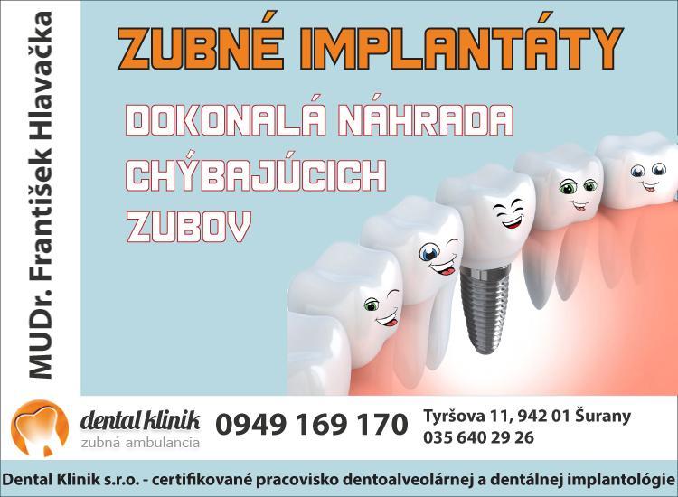 zubne implantaty dental klinik